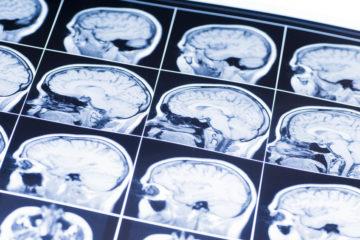 Photo d'une IRM de cerveau